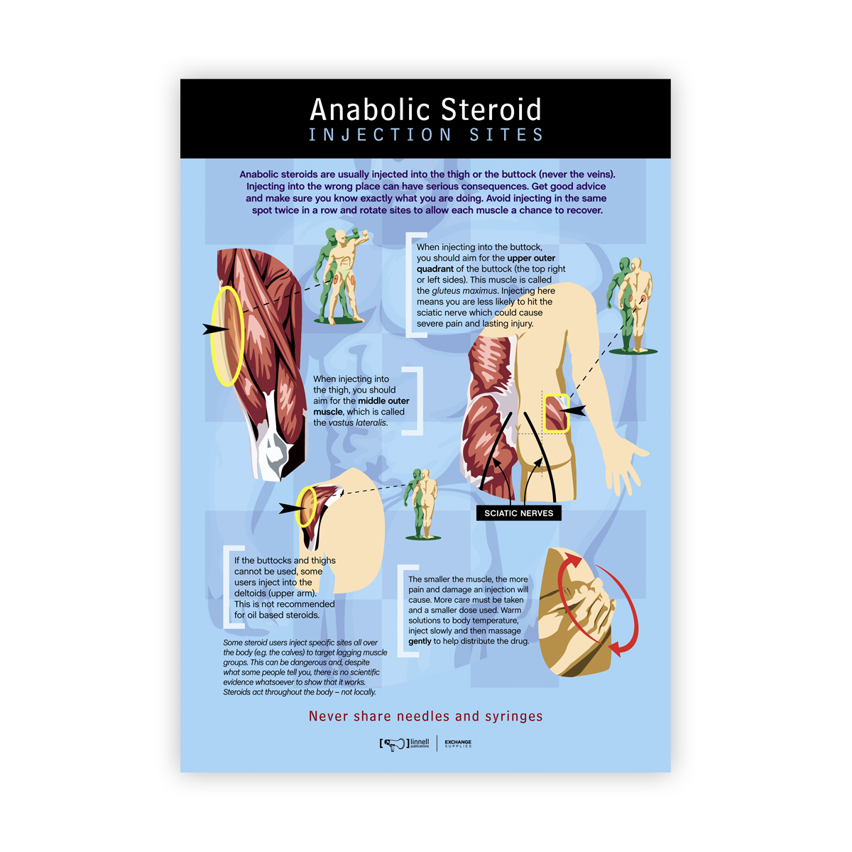 Anabolic Steroid Injection Sites Poster